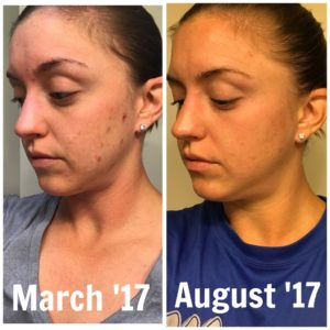 Acne Program Before After