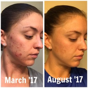 Cystic Acne Program Before After