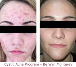 Cystic Acne Solution Program | Be Well Monterey